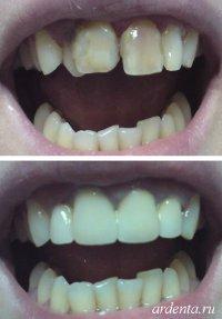 Виниры при скученности зубов