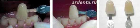 световое отбеливание зубов