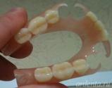 протез зубной нейлоновый фото