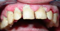 язвенный стоматит и большой объем зубного камня (преимущественно в области зубов)